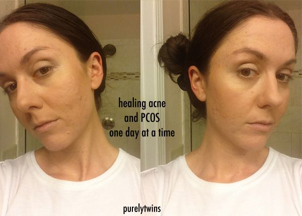 Pcos Acne Journey Continued Supplements And Products That Help Hormonal Acne Acne Supplements Hormonal Acne Treatment