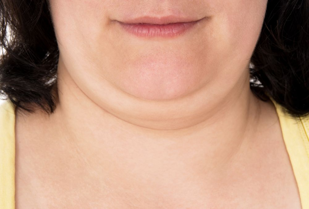 How do i get rid of my double chin without surgery or