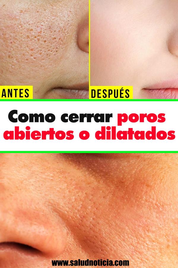 Como Cerrar Poros Abiertos O Dilatados Beauty Hacks Tips Skin