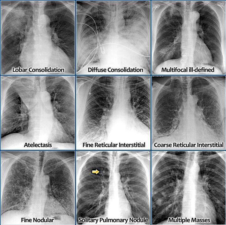 How To Identify And Differentiate Lung Diseases From Chest X Ray Medical Imaging Respiratory Therapy Radiology