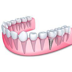 زراعة الاسنان مميزاتها و أهم أنواعها و عيوبها مقالات طبية كل يوم معلومة طبية Teeth Implants Dental Implant Procedure Single Tooth Implant