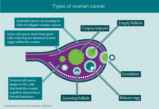 Types of Ovarian Cancer | Ovarian Cancer Knowlege | Pinterest ...