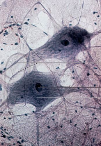 test: histology lab photo quiz | quizlet | histología/histology, Muscles