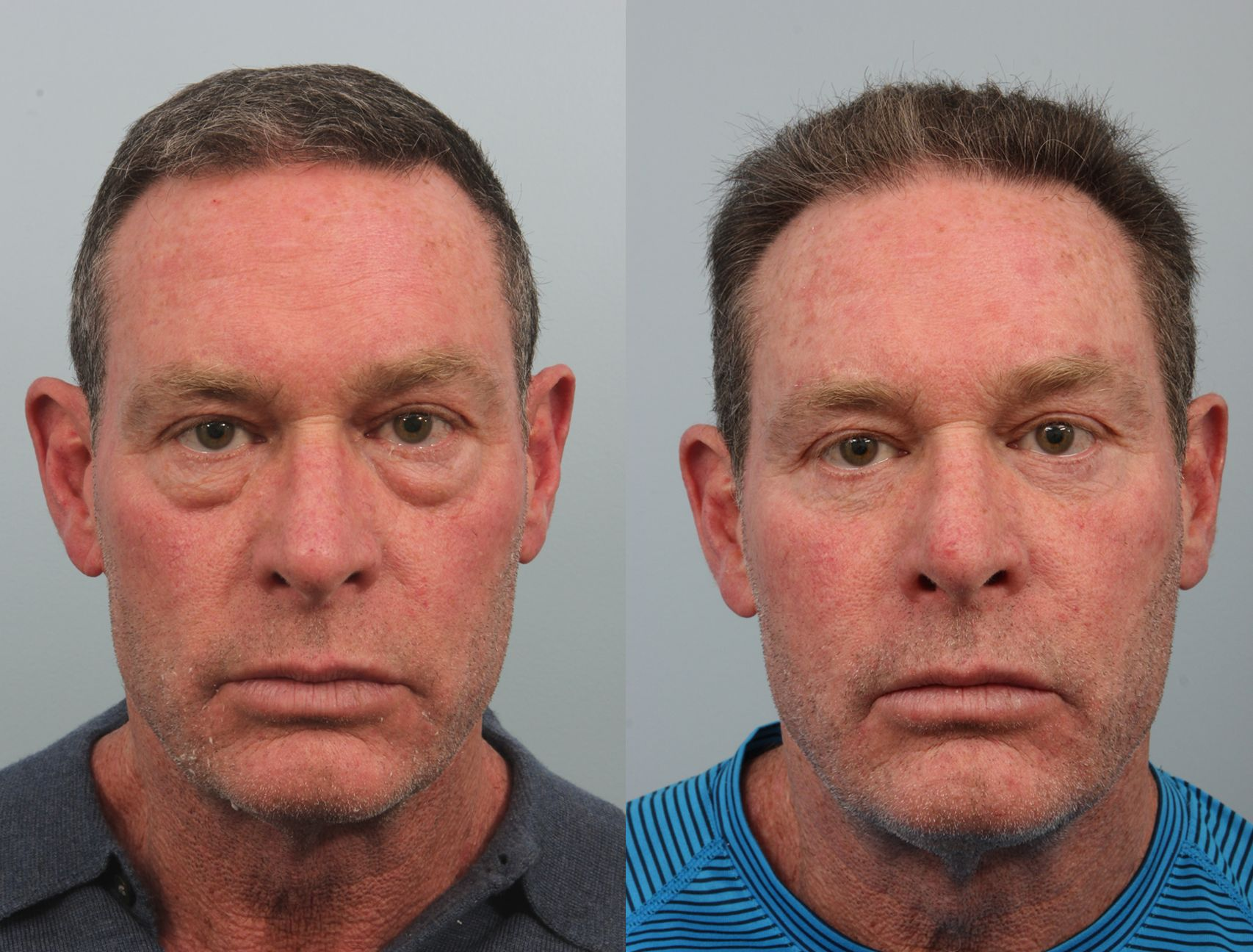 This is a middle aged business man who is under a considerable amount of stress with his businesses. He was looking for an opinion and Dr. Williams recommended a blepharoplasty to his lower eyelids along with fat grafting. Fat transfers were also placed in his mid-face area. He is seen here a year out and is thrilled with his overall results.  Real Patient Results: http://www.williamsfacialsurgery.com/photo-gallery/blepharop #DrEdwinWilliams #EyelidSurgery #undereyebags #Blepharoplasty