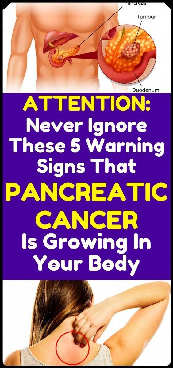 #medical-health-diet #pancreas #warning #fitness #danger #health #early #signs #might #that #your #a...