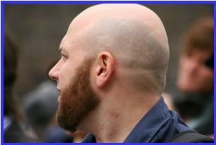 Side View Bald Head With Beard Bald With Beard Bald Heads