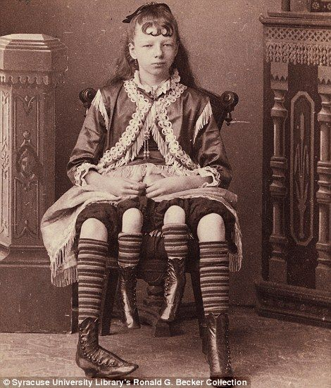 Four-legged Myrtle Corbin, who had two sets of female genitalia. (Freak circuses around the mid-1800s)  - [ http://www.dailymail.co.uk/news/article-2165807/Carnival-sideshow-freaks-19th-century-New-York.html ]