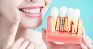 What Is Bone Graft What Are The Risk Factors Involved What Is Bone Graft What Are The Risk Factors Involved