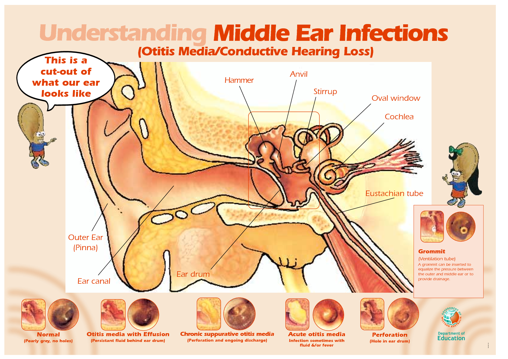 ☤ MD ☞☆☆☆ Middle ear infections.