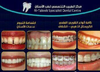 تقويم الأسنان لكل الاعمار Dental Center Dental Live Lokai Bracelet