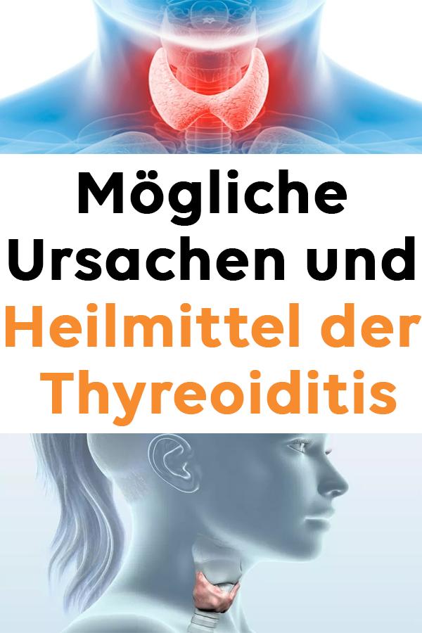 Mögliche Ursachen und Heilmittel der Thyreoiditis #..