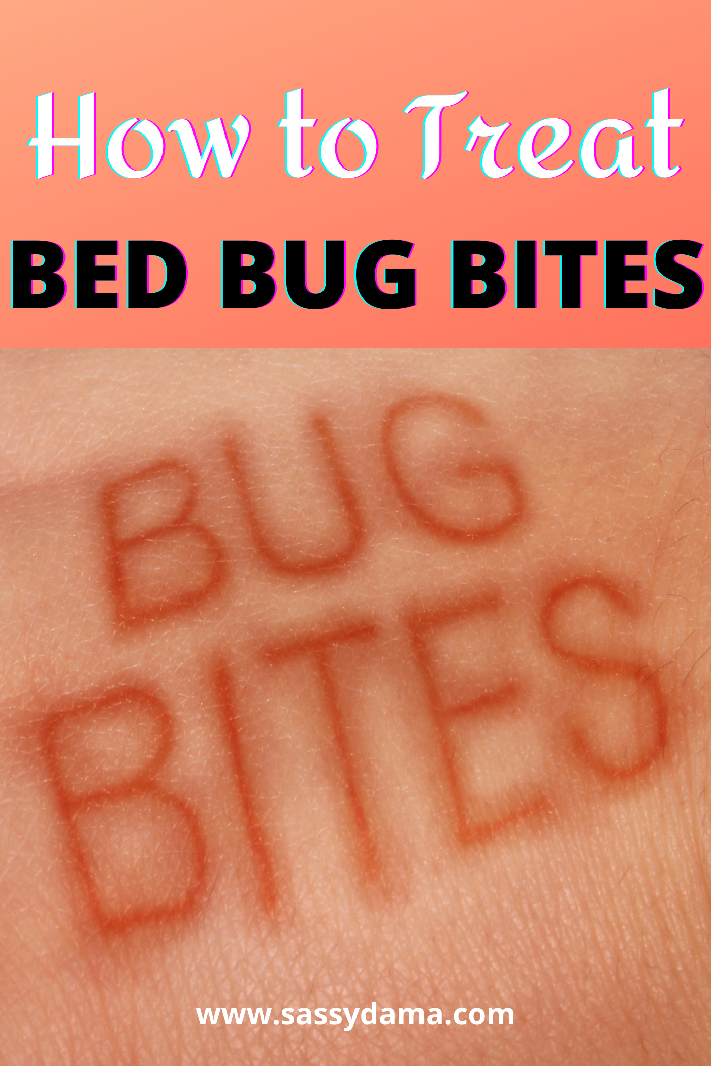 Home Remedies How to Treat Bed Bug Bites in 2020 Bed