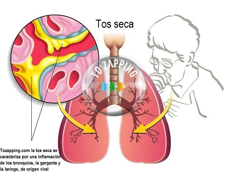 Remedios caseros para la tos seca la tos seca o tos for Jugos expectorantes que alivian la tos seca