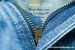 Diastasis recti is a symptom of an underlying problem instead of just an unsightly condition. #diastasisrecti