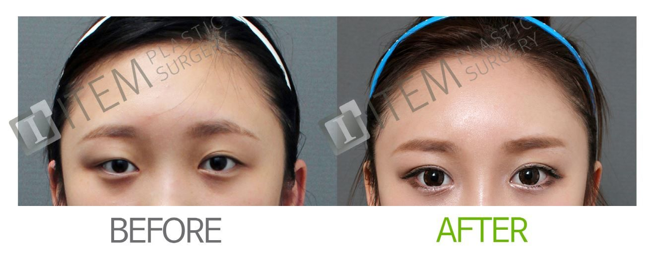 Plastic surgery, cosmetic surgery, korean plastic surgery, eyelid