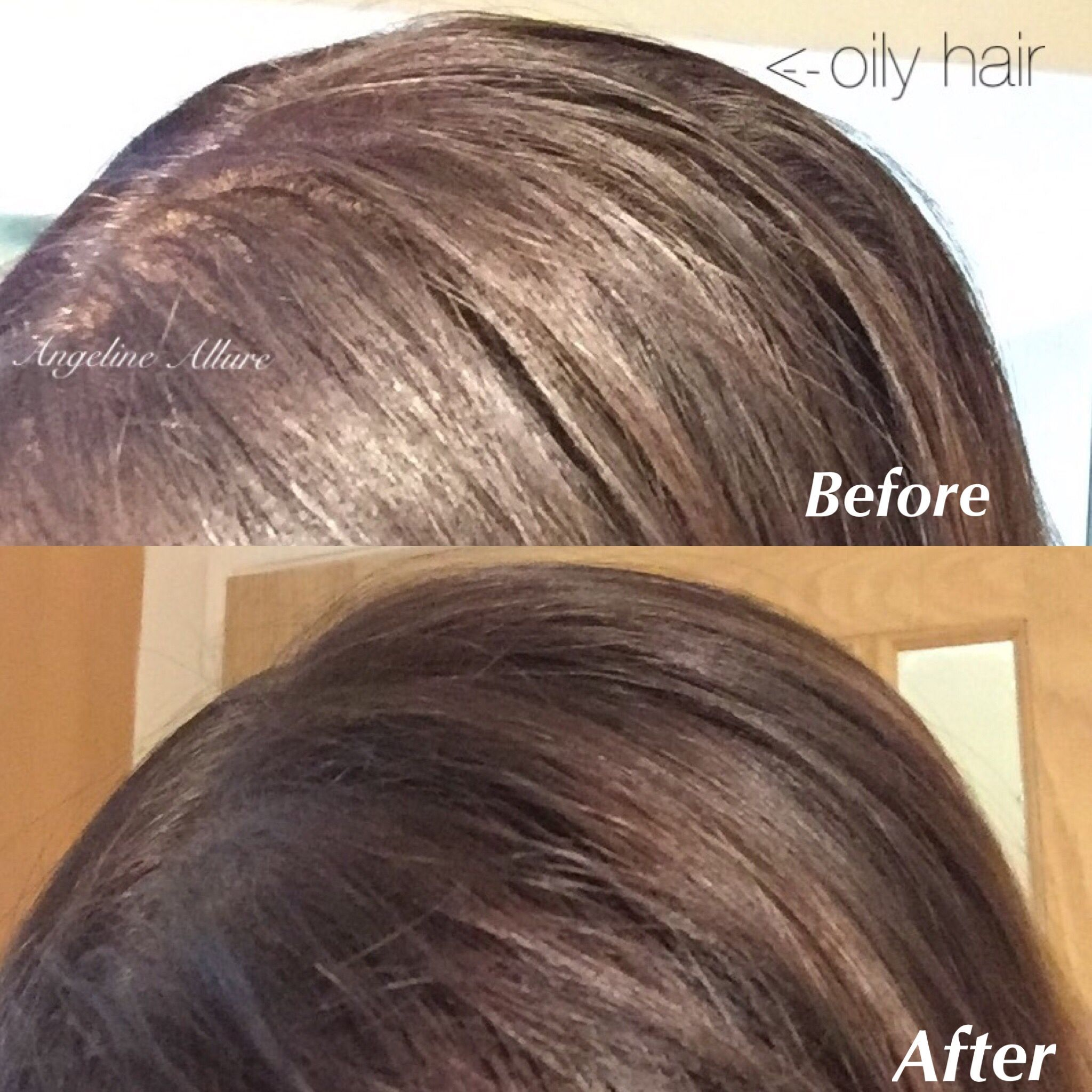 Batiste Dry Shampoo To The Rescue Say Bye Bye To Oily Roots Hair Checkout My Blog For Full Product Review Link In Bio Www An Roots Hair Bio Oil Skin Hair