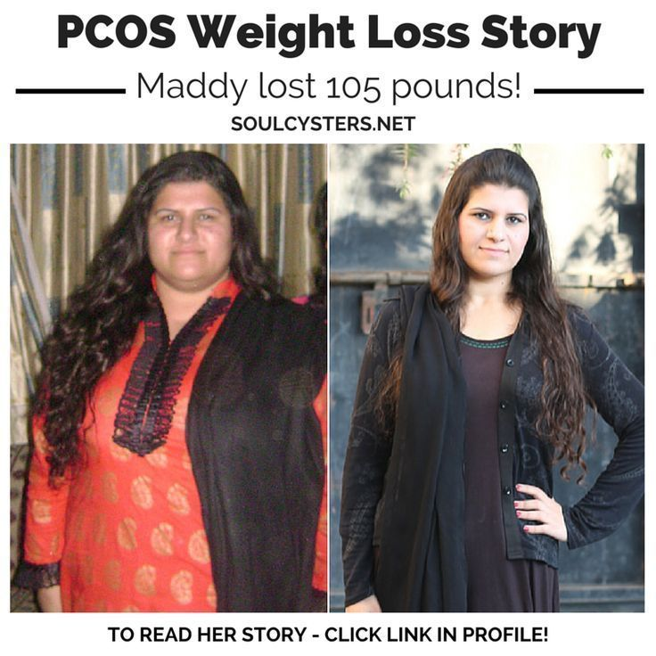 Before And After Pcos Maddy S 105 Pound Weight Loss Journey Pcos
