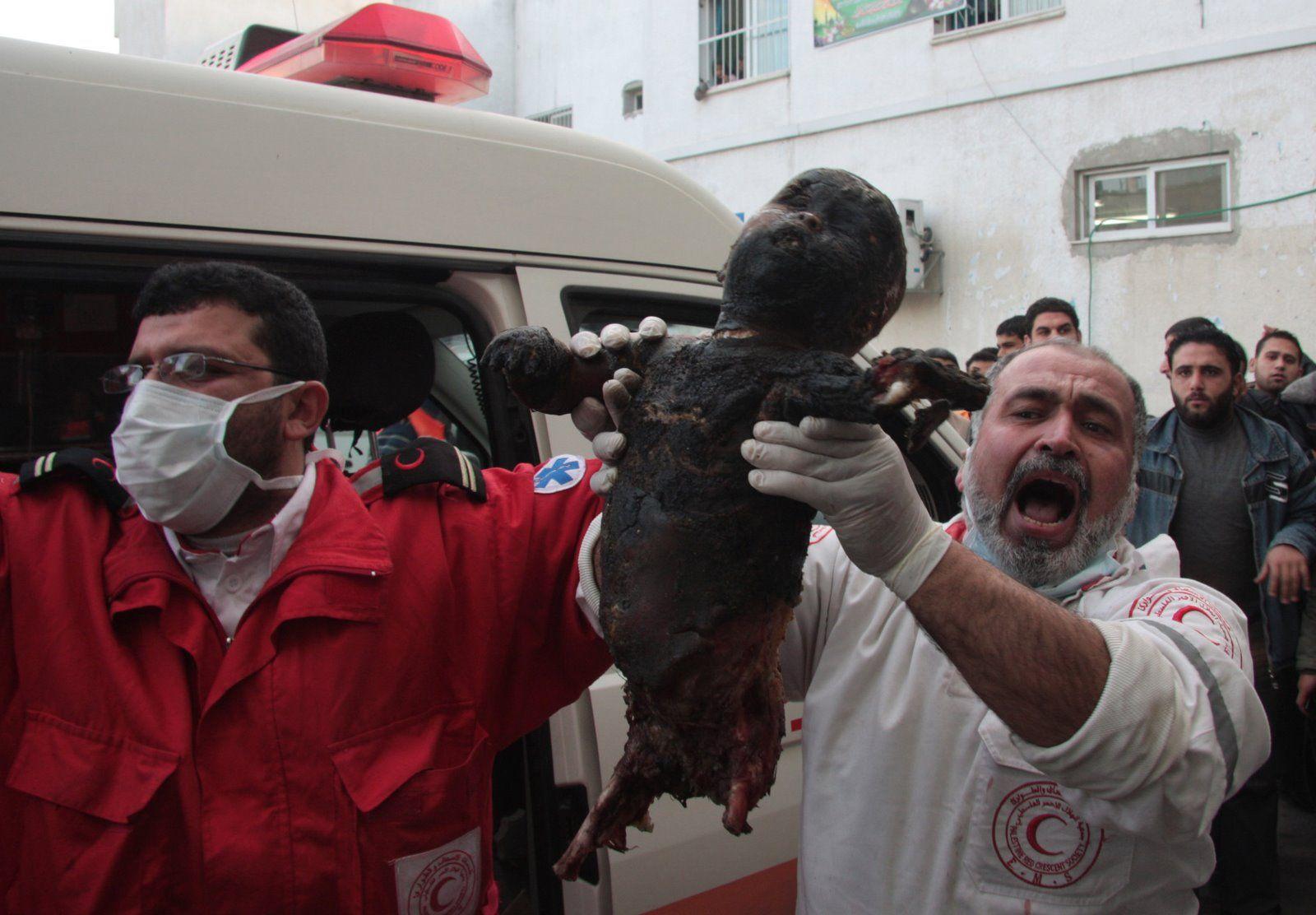 Image result for Gaza kid killed by phosphorus bombs