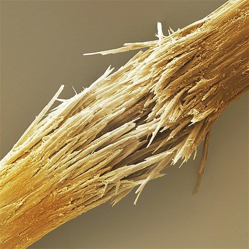 Image: Damaged human hair shaft (© Cheryl Power/Science Photo Library/Corbis)