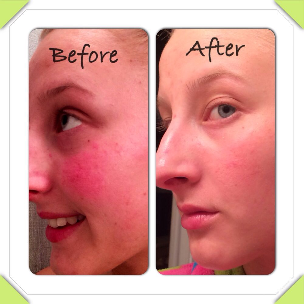 Check out my results using Seacrets mud soap, toner, and