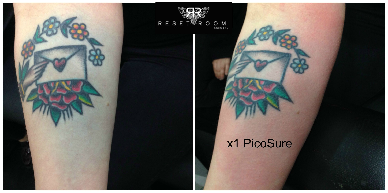 Blowout removed | Tattoos | Tattoo blowout, Tattoos, Laser tattoo