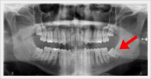 Resultado de imagen de radiografia pericoronaritis