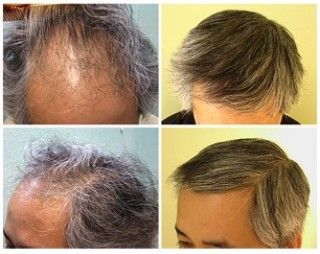 مركز إنترناشيونال استاتيك زراعة الشعر في تركيا بأحدث التقنيات وإجراء جميع عمليات التجميل بما في ذلك تجميل الوجه والجسم وشفط Behind Ear Tattoo Ear Tattoo Ear