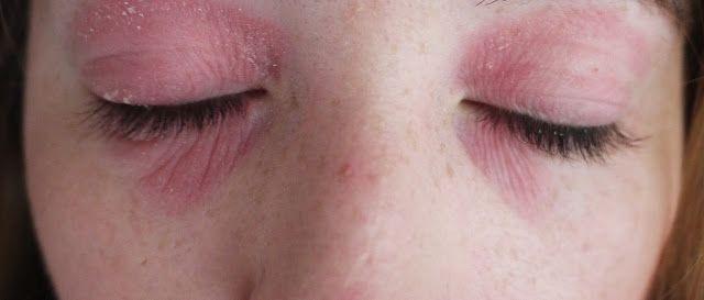 Dermatitis alrededor de los ojos