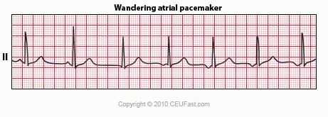 Wandering Atrial Pacemaker Rate: Could be fast or slow ...