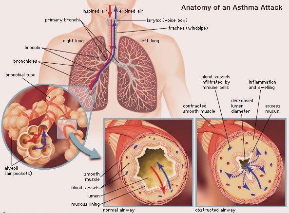 diagram of price elasticity of demand diagrams: asthma disease diagram | suman enterprises ... diagram of ashtma #7