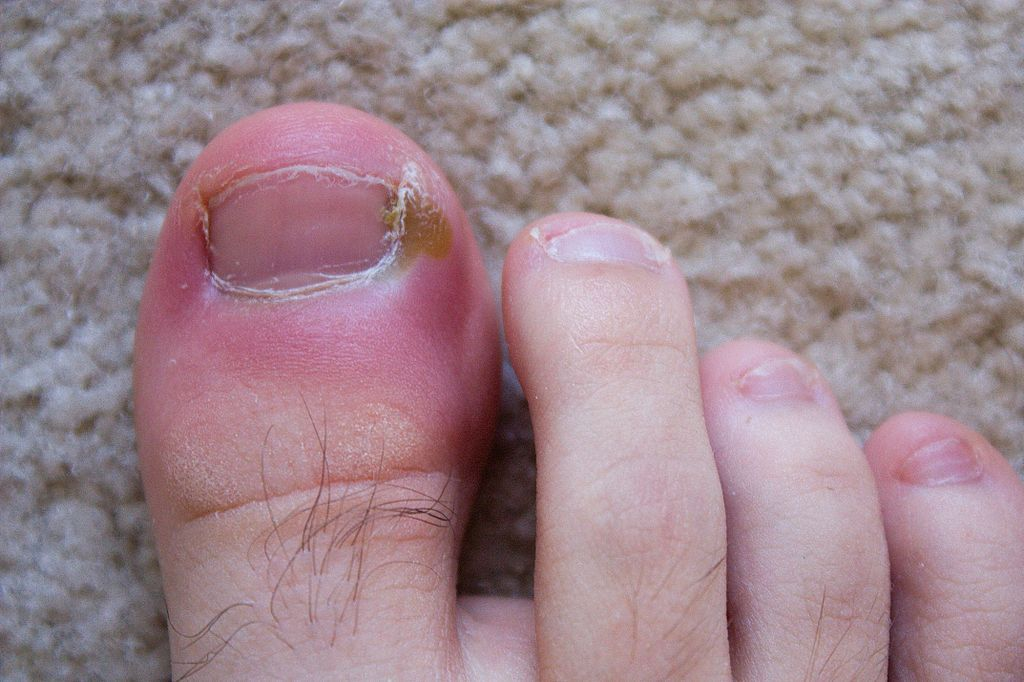 How Much Does Ingrown Toenail Surgery Cost | How Coster | Pinterest