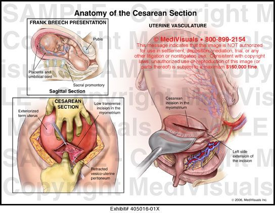 C Section Anatomy Anatomy Of The Cesarean Section Medical