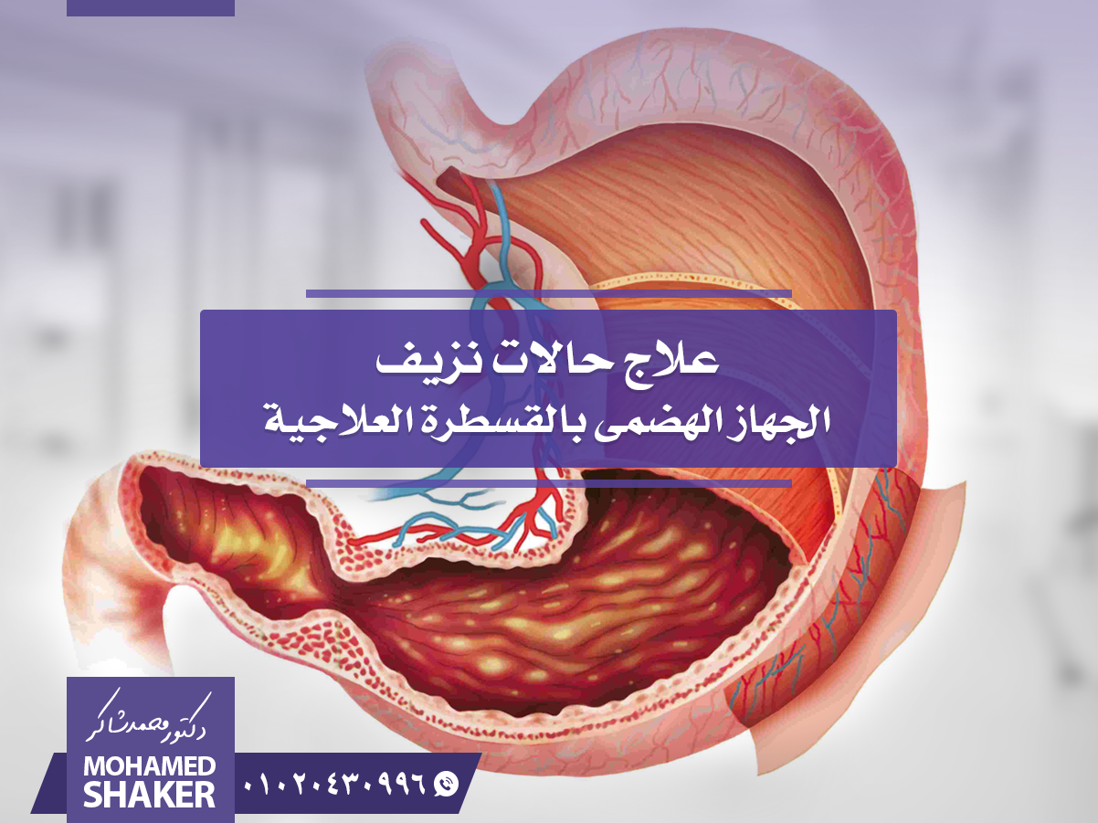 Pin By دكتور محمد شاكر استشارى الأشع On أمراض نعالجها بالأشعة التداخلية Sima Shaker