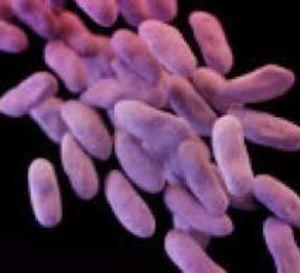 USA:+les+autorités+mobilisées+contre+la+propagation+d'une+bactérie+super-résistante