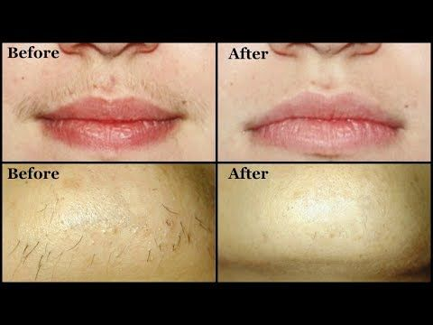 How To Remove Unwanted Upper Lip Hair Chin Hair By Yourself