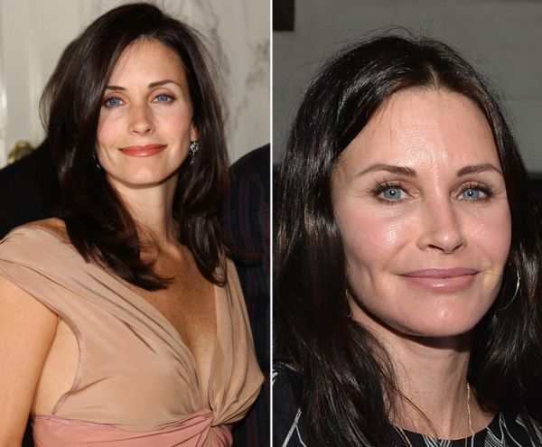 Courteney Cox Plastic Surgery How It Should Be Used