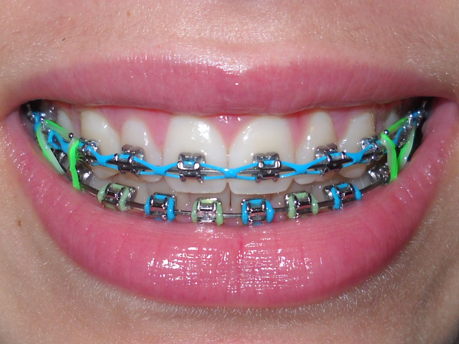 123 everyday braces care! floss ONCE, rinse with