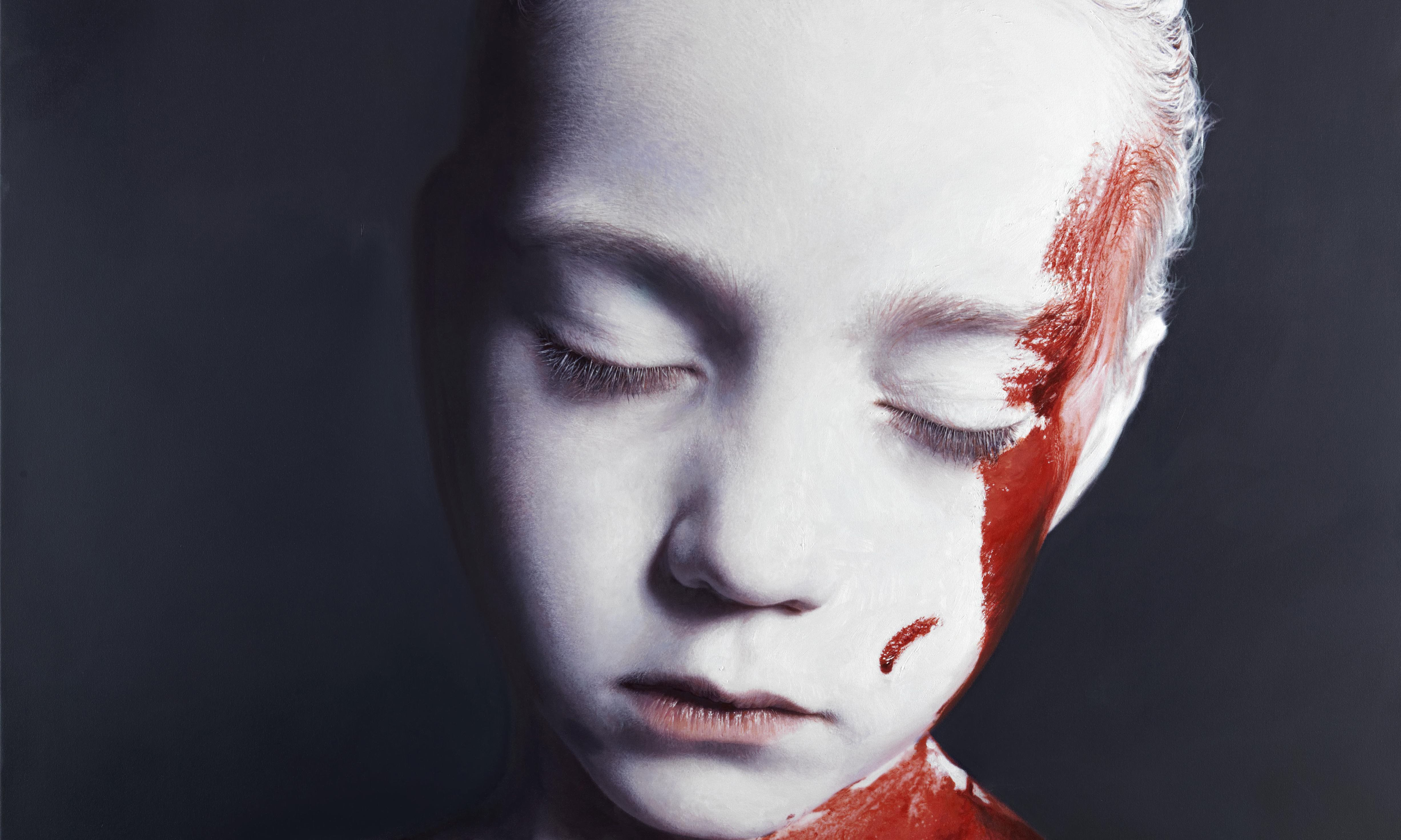 Gottfried Helnwein The wounded child