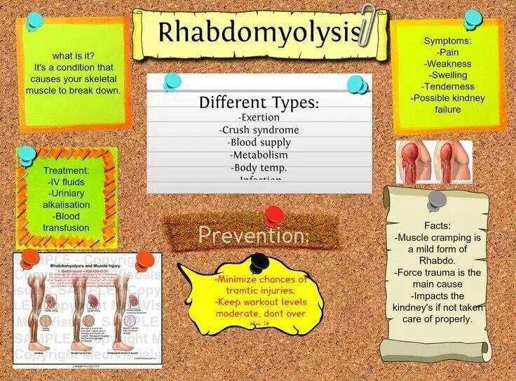 Rhabdomyolysis School stuff Pinterest Athletic training and - physical assessment form