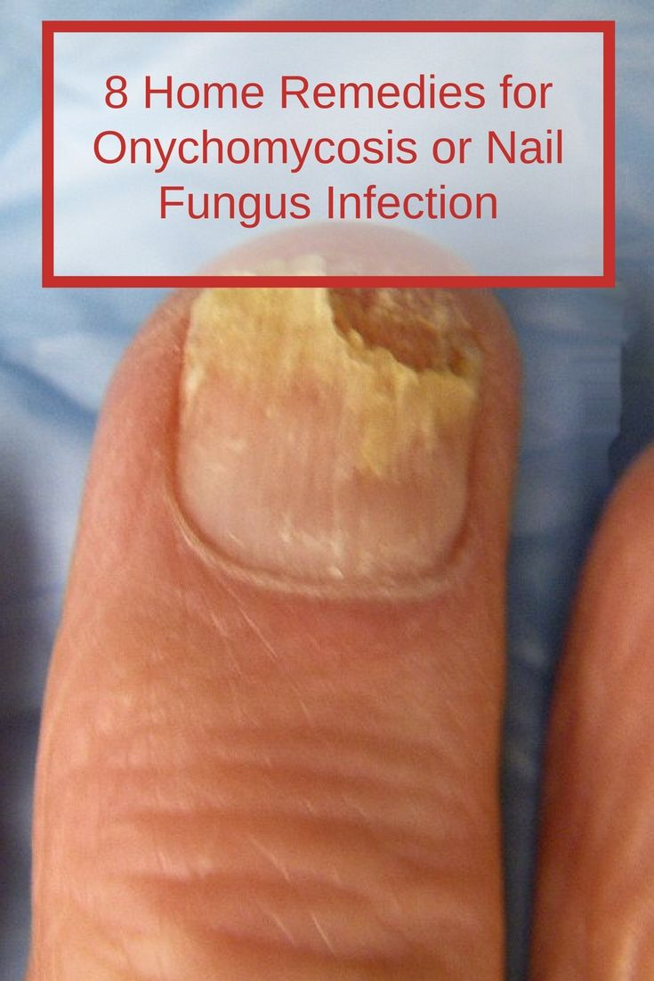 Onychomycosis or nail fungus infection is very common, affecting ...