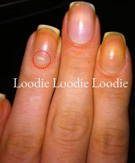 loodie loodie loodie: Cuticle Care | Beauty | Pinterest | Nail ...