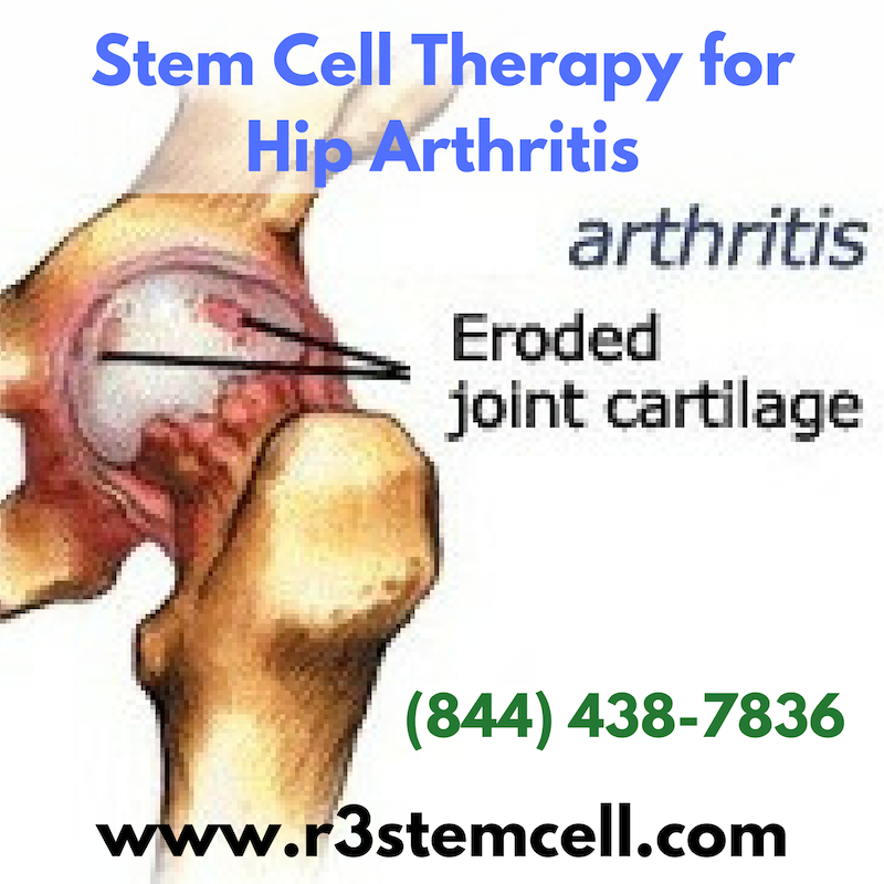 Stem Cells Is On The Leading Edge Of Regenerative Medicine Houston United States Which Includes Stem Cell Therapy F Stem Cell Therapy Stem Cells Cell Therapy