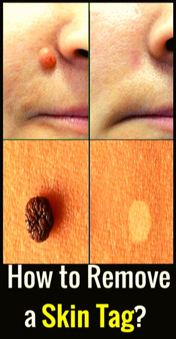 11+ Skin tag removal near me information