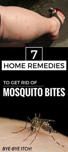 How To Get Mosquito Bites To Go Away Quickly