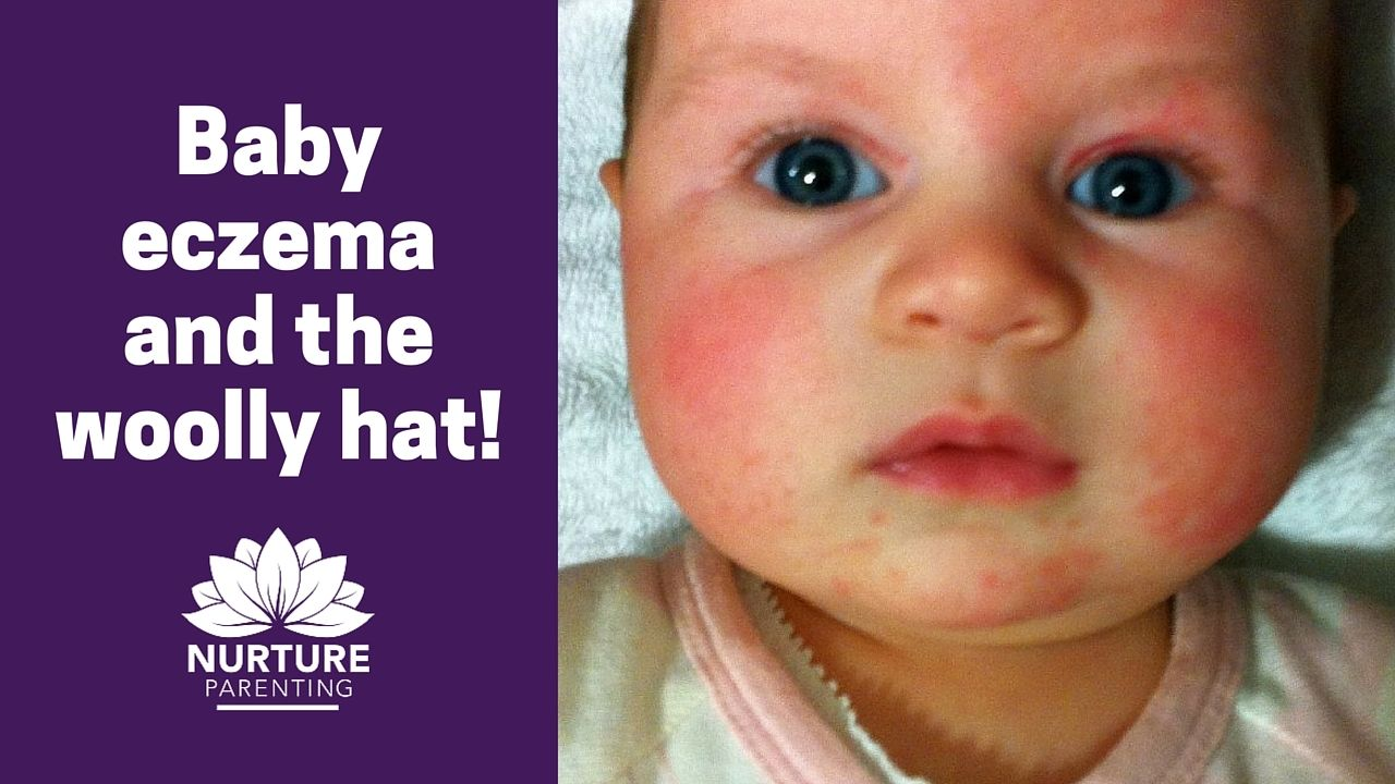 Baby eczema and the woolly hat agatha christie warm and track
