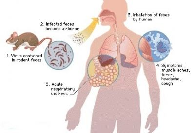Facts About Hantavirus Pulmonary Syndrome #health #education ...