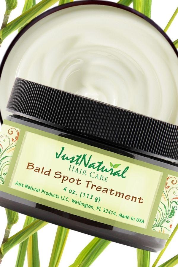 Bald Scalp Spot Cream Bald Spot Treatment It S Natural