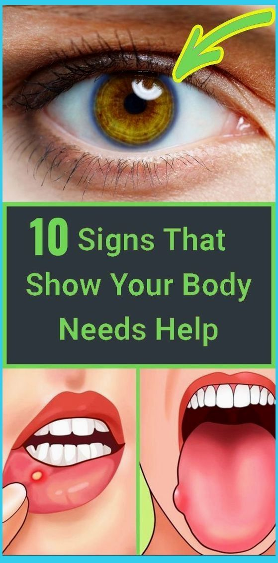 10 Signs That Your Body Shows When It Is Suffering
