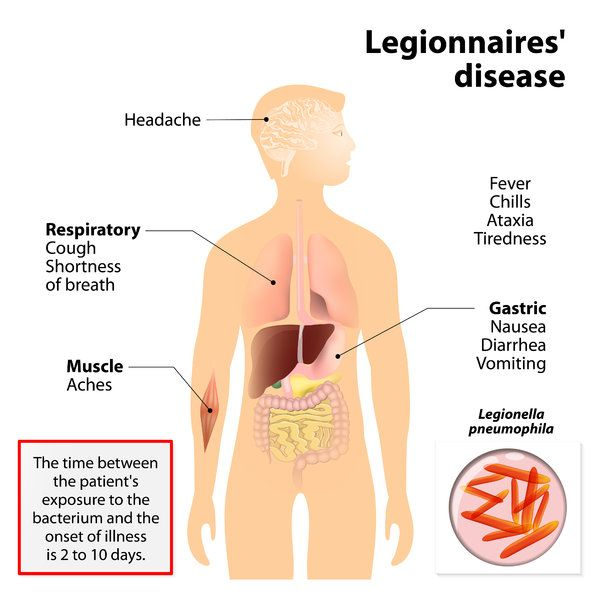 legionnaires disease or legionellosis or legion fever. signs and, Human Body