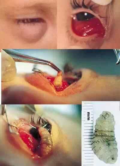 WARNING:  Gross Pic for some!  Human Bot Fly's Eggs got in eyes (mistaken as dust).